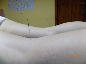 Иглотерапия